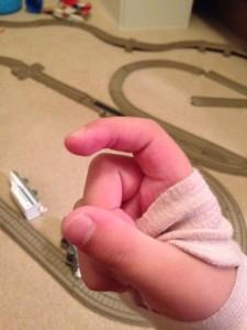 finger (4)