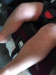 rash (2)